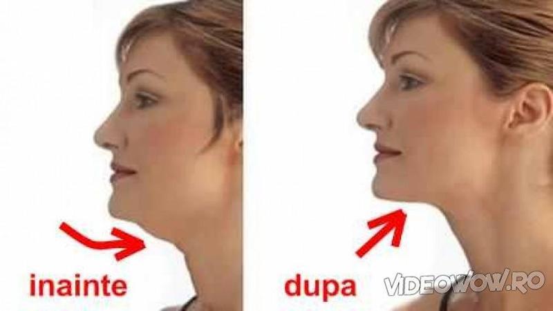 Iată exerciţiile care te scapă de guşa nedorită a gâtului! Sunt foarte simple şi oricine le poate face cu mare uşurinţă, iar efectele sunt garantate!
