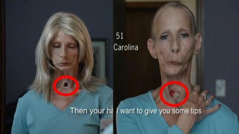 Această femeie are o GAURA în gât prin care respiră... motivul şocant pentru care a ajuns aşa este unul pe care mulţi dintre noi îl facem în fiecare zi! Viaţa ta este în PERICOL... opreşte-te