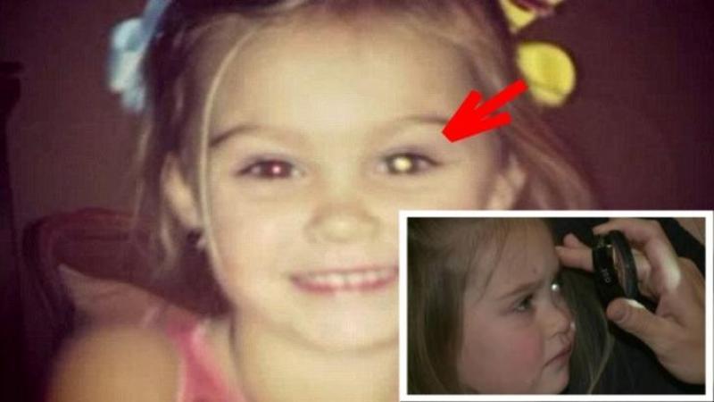 O tânără mămică a postat o poză pe FACEBOOK cu fetiţa ei: Ce s-a întâmplat după ce s-a uitat la ochii ei... nu îţi va vine să crezi! Ochii fetiţei avea să dezvăluie un secret sumbru despre ea