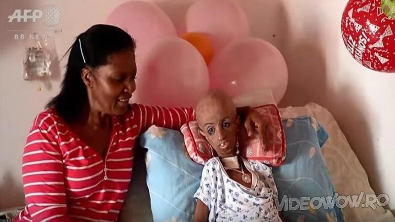 Mama are 35 de ani, iar fiica ei.... 90! Ce se întâmplă cu CORPUL acestei fetiţe de doar 15 ani te va şoca cu adevărat! Nici medicii nu au o explicaţie pentru boala ei bizară...