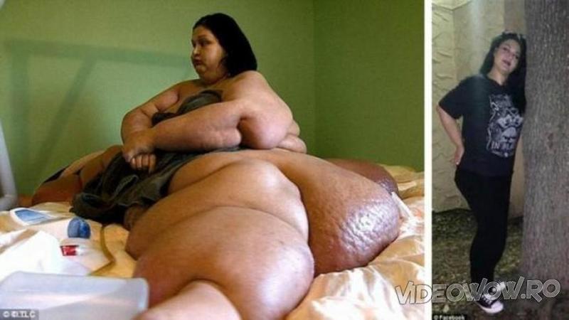 Si-a UCIS nepotul datorită greutăţii ei şi asta a marcat-o pe viaţă: Iată cum arată acum femeia de 360kg - Transformarea ei te va lăsa fără cuvinte...