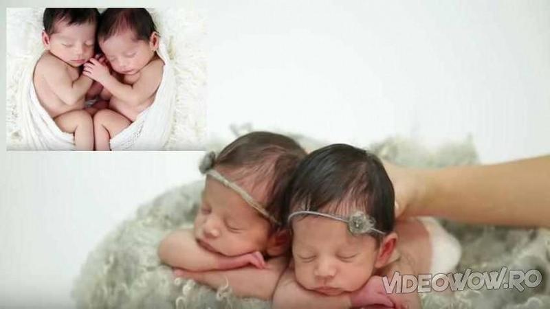 O mămică a vrut să IMORTALIZEZE câteva imagini cu gemenii ei abia născuţi: Ce a surprins în fotografii sunt 2 îngeraşi mici şi frumoşi... Doamne cât de puri şi inocenţi sunt!