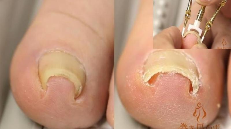 Uite cum poţi să îţi tratezi UNGHIILE intrate în carne! Această metodă GENIALA te va ajuta să scapi de durerile insuportabile ale unghiilor crescute prost!
